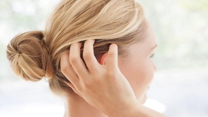 التخلص من قشرة الشعر