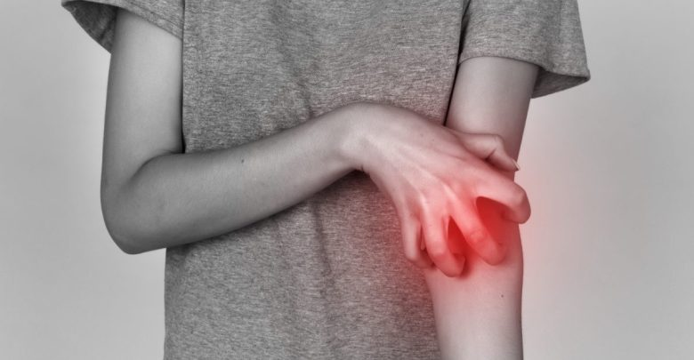 Photo of علاج الحساسية الجلدية
