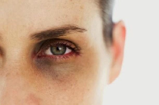 Photo of أفضل علاج للتخلص من الهالات السوداء تحت العين