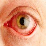 علاج احمرار العين في البيت