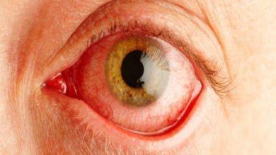 Photo of علاج احمرار العين في البيت