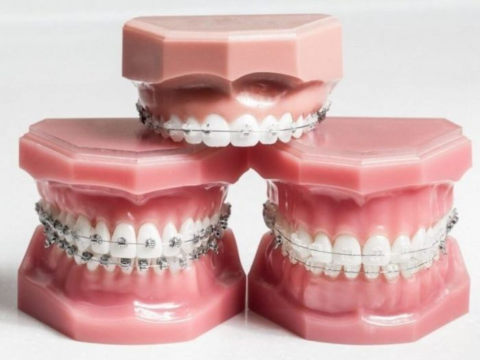 تقويم الأسنان الشفاف