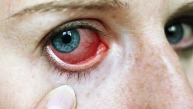 Photo of علاج التهاب العين واحمرارها
