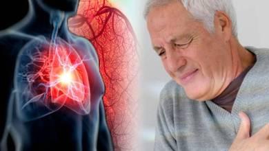 Photo of ما هي أعراض القلب الأولى ؟