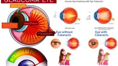Photo of ارتفاع ضغط العين ما هي مسبباته و كيفية علاجه