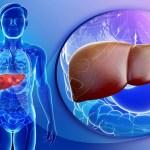التهاب الكبد الحاد
