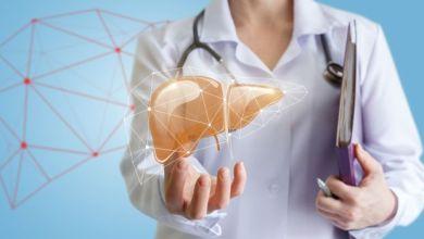 Photo of أرقام انزيمات الكبد العالية