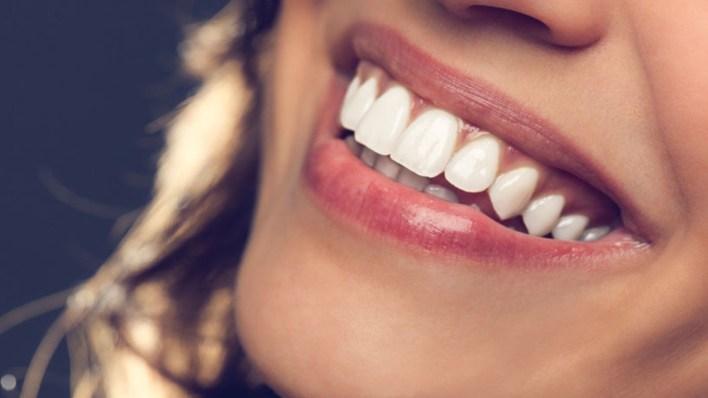 إزالة إصفرار الأسنان