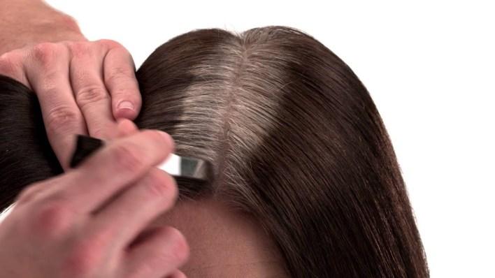 علاج انتفاخ الوجه