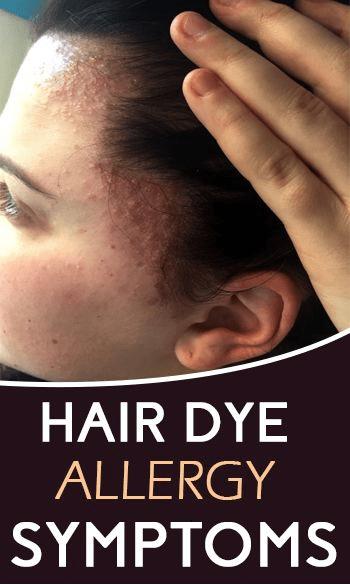 علاج حساسية صبغة الشعر لمن يعاني الحساسية