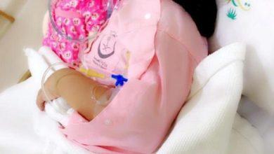 Photo of تفاصيل اصابة طفلة في السعوديه بانفلونزا الخنازير