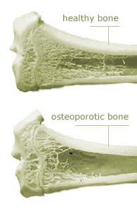 الفرق بين العظام الطبيعية وهشاشة العظام