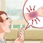 طرق علاج الكدمات .