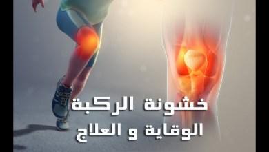 Photo of علاج خشونة الركبة بالعسل