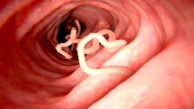 Photo of علاج دودة الأسكارس بالثوم