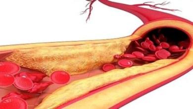 Photo of علاج الدهون الثلاثية بالأعشاب