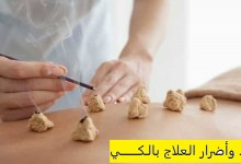 Photo of فوائد وأضرار العلاج بالكي