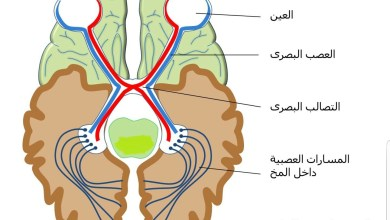 Photo of أسباب التهاب العصب البصري
