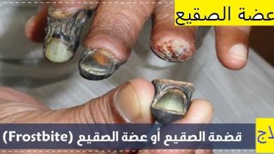 Photo of ما هي عضة الصقيع وطرق علاجها