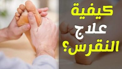 Photo of علاج النقرس واملاح القدم لتجنب نوبات النقرس والامه