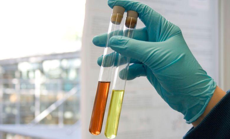 Photo of علاج الدم في البول بالأعشاب الطبيعية المنزلية