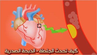 Photo of كيف تحدث الذبحة الصدرية