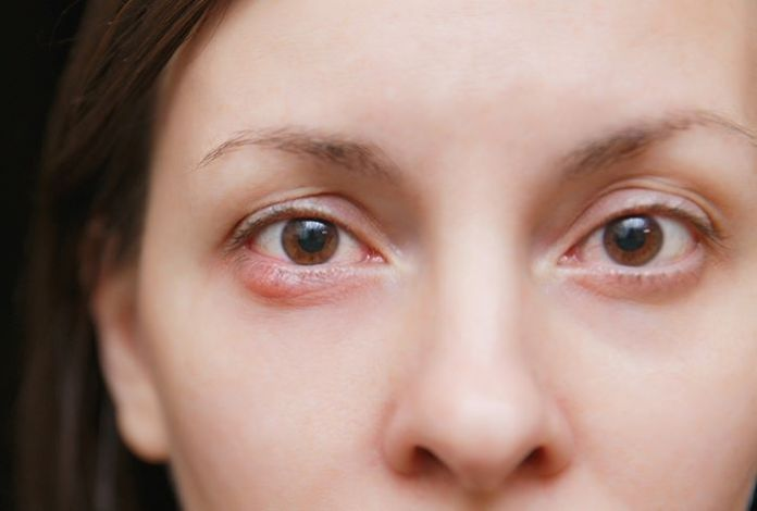 10 Home Remedies For Eye Infection in Children