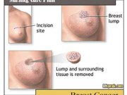 nursing-care-plan-breast-cancer