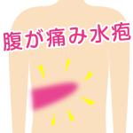 帯状疱疹.fw