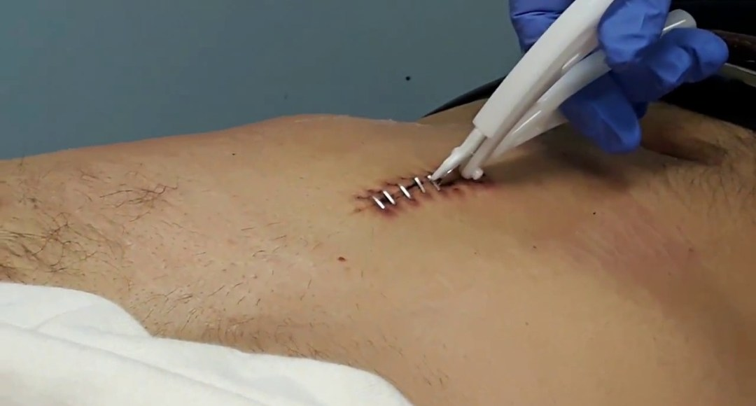 surgical staples on skin