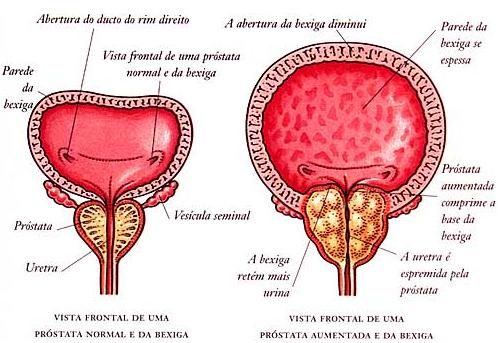 Cancer prostata tratamiento hormonal - Unguent levomekol din negi genitale