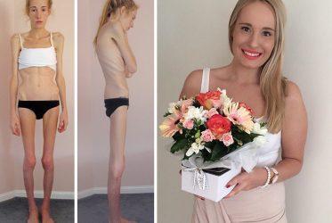 Anoressia nervosa in aumento
