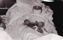 Dr. Leonid Rogozov în timpul auto-operației de peritonită