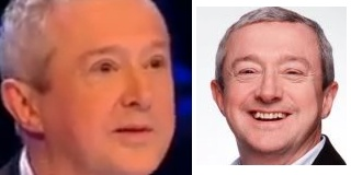 louis-walsh-eye-surgery-before-after