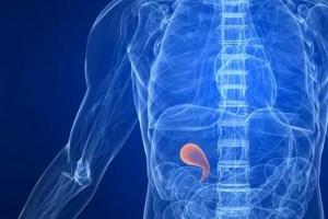 Cáncer de vesícula biliar