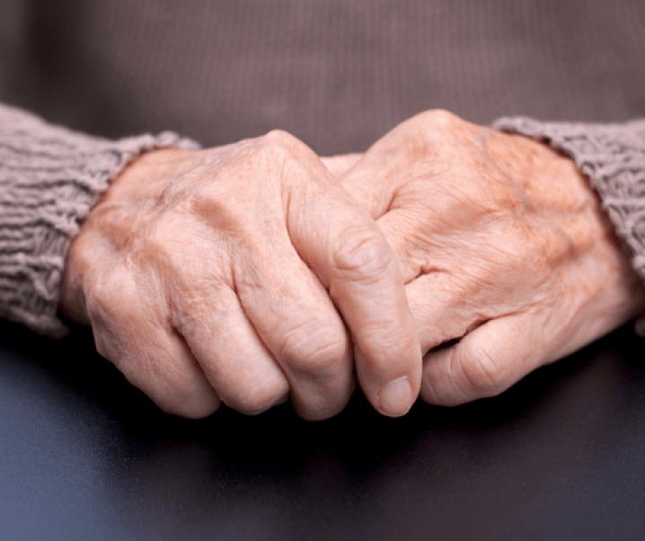 Enfermedad del mal de Parkinson: Causas, síntomas y tratamiento