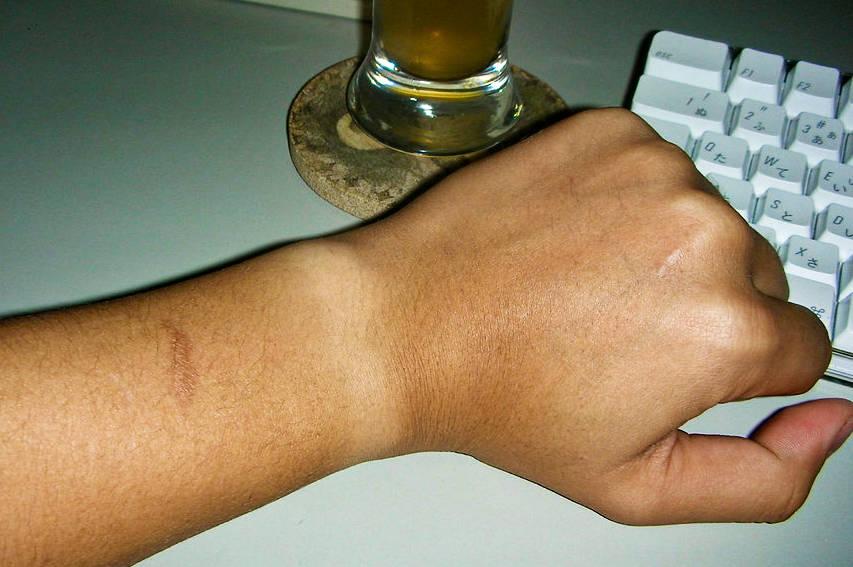 Scar on man's arm