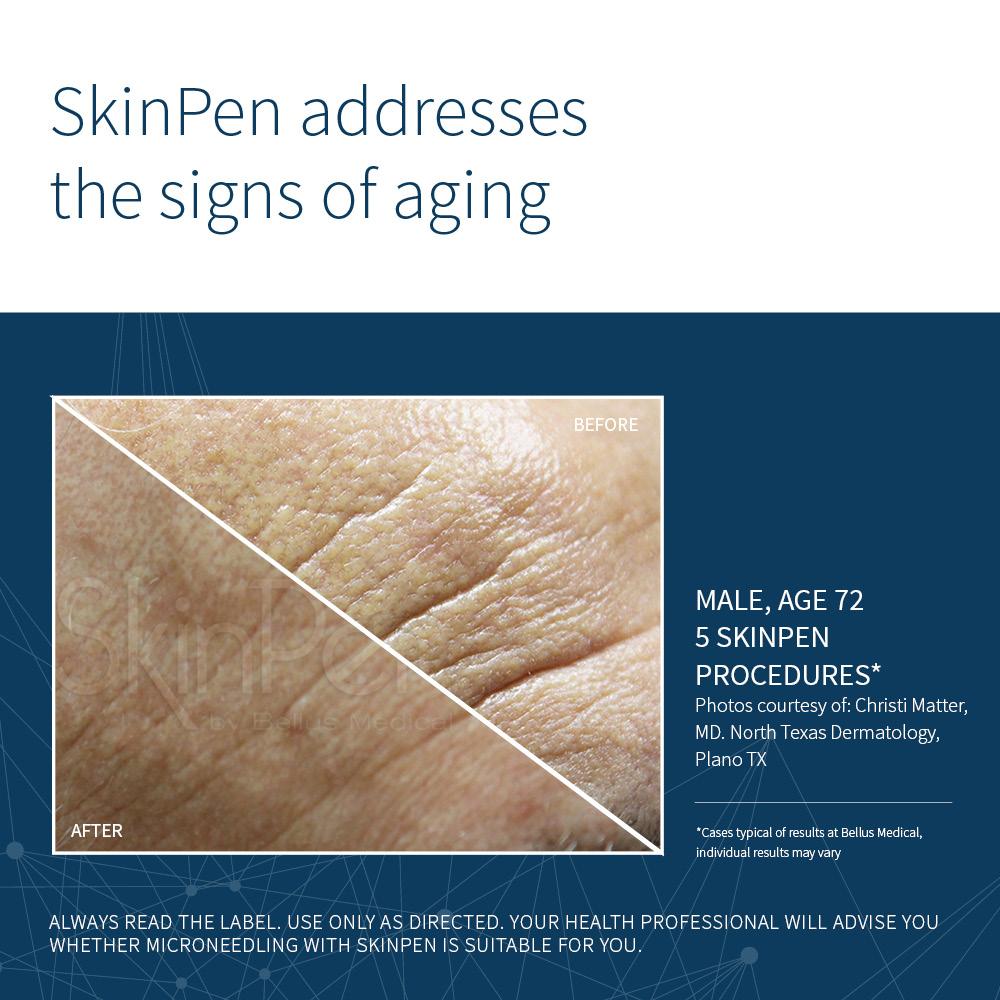 SkinPen Social Aging_1