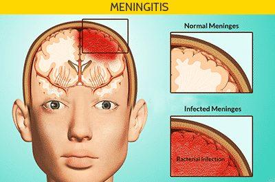 बैक्टीरिया मेनिंजाइटिस