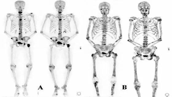 bone-metastasis