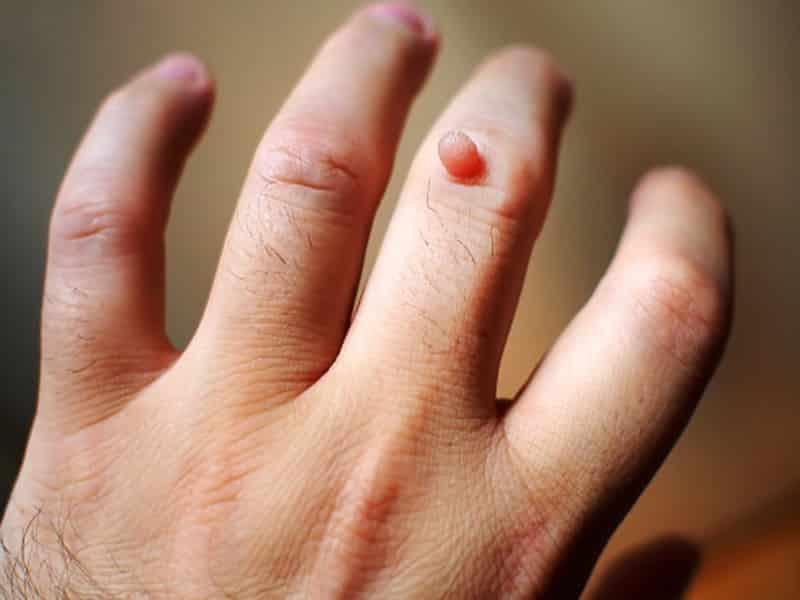 मस्से क्या होते हैं ? - Warts In Hindi