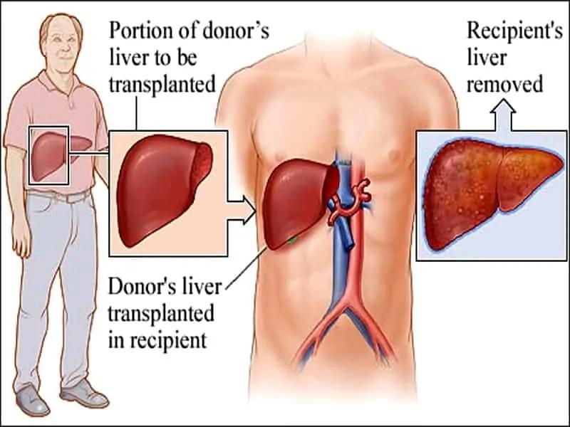 लिवर प्रत्यारोपण व इसकी प्रक्रिया - Liver Transplant In Hindi