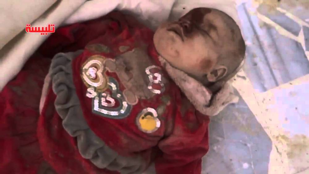 Were These Young Children Killed By Russians In Syria?