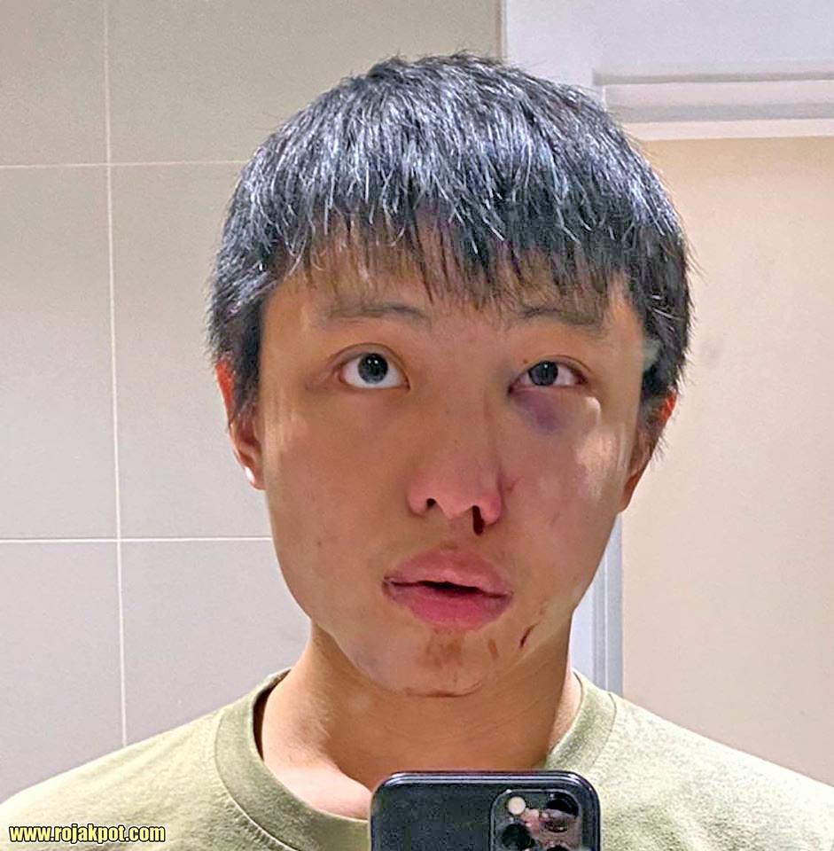 Jonathan Mok Singaporean Student Attacked On Oxford Street!