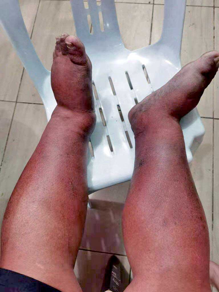 Did This Man Get Swollen Legs From COVID-19 Vaccine?