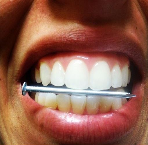 Fingernail Biting: Terrible For Your Teeth