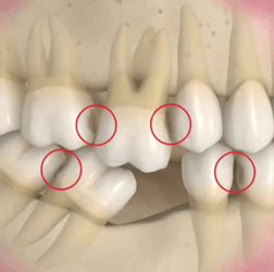 Tooth and Bone Loss