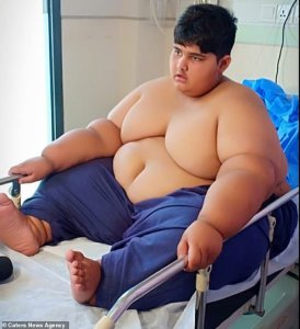 13040886 6988337 Now he is set to undergo life saving gastric band surgery to cur a 15 1556873469772 1