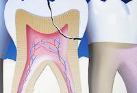 Photo of A fogak öngyógyító képessége már nem vitatott téma