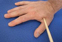 Photo of Ezek az akupresszúrás pontok maszírozása olyan fájdalmakat szüntet meg ,melyek szinte minden embernél jelentkeznek